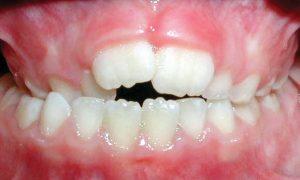 Crossbite-of-Back-Teeth