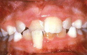 Crossbite-of-Front-Teeth
