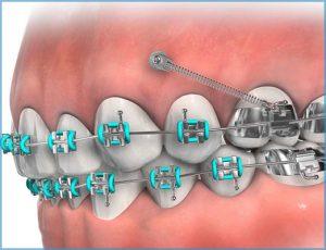 Anchorage Device Mountain View Orthodontics Longmont Berthoud CO