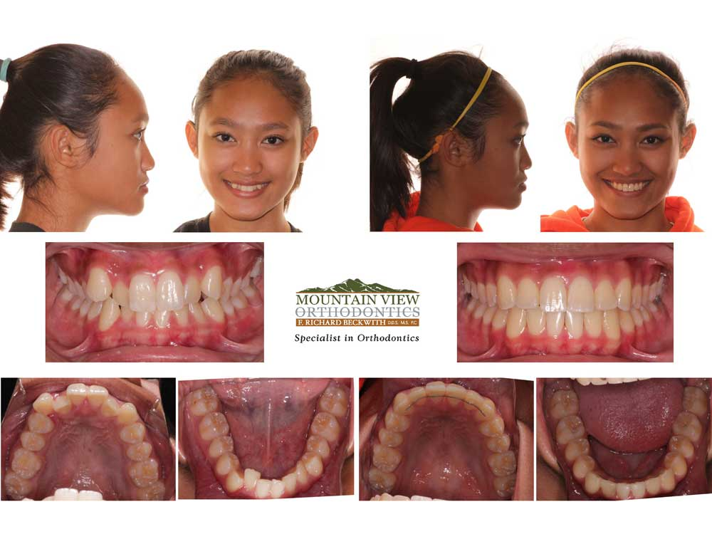 Anastasia Before and After Mountain View Orthodontics Longmont Berthoud CO
