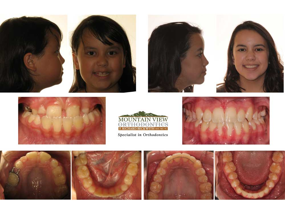 Audrey-Before-and-After-Mountain-View-Orthodontics