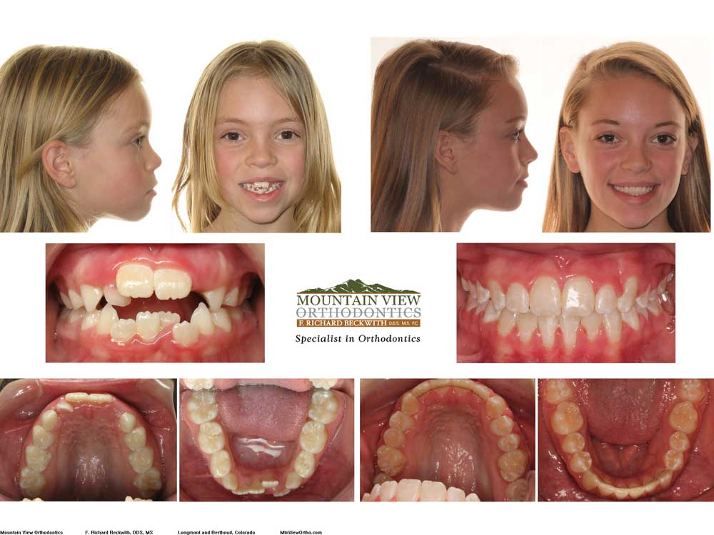 Chloe-Before-and-After-Mountain-View-Orthodontics