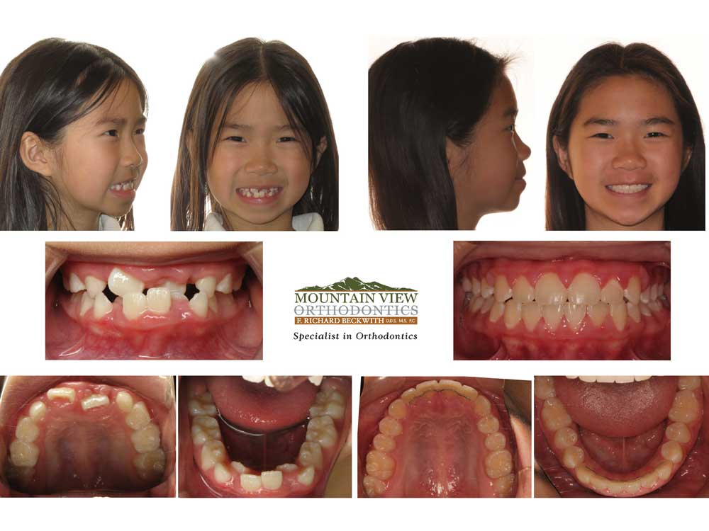 Lydia-Before-and-After-Mountain-View-Orthodontics