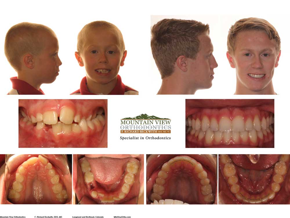 Zack-Before-and-After-Mountain-View-Orthodontics