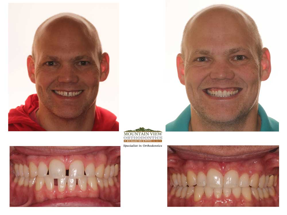 Sam Before and After Mountain View Orthodontics Longmont Berthoud CO