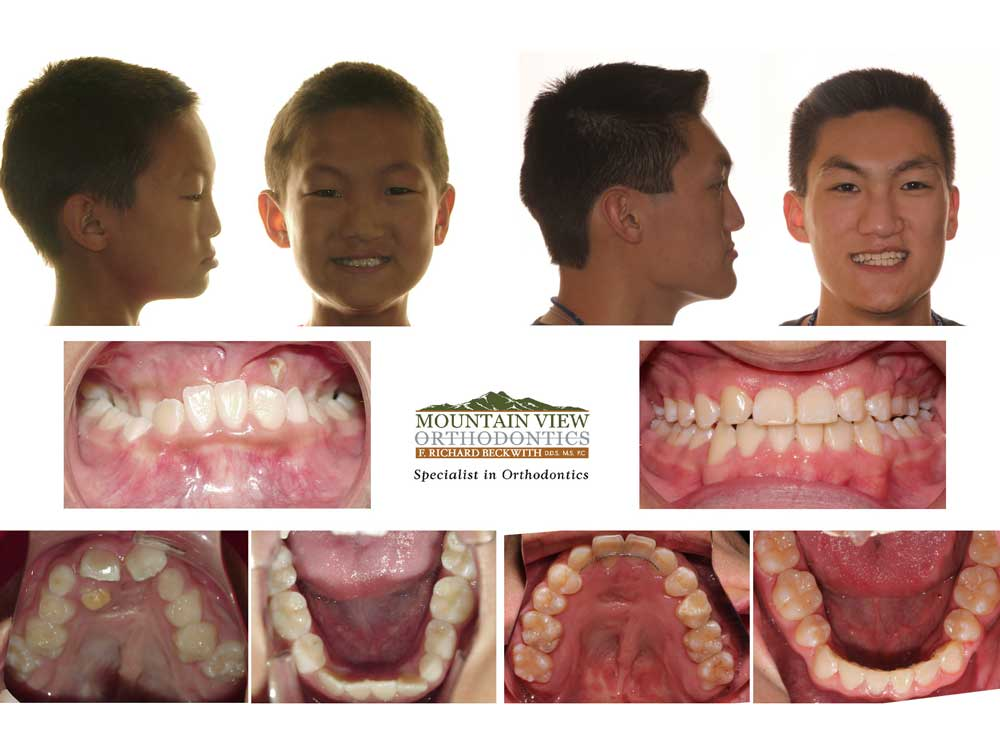 Cameron-Before-and-After-Mountain-View-Orthodontics