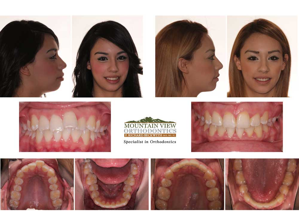 Carmen-Before-and-After-Mountain-View-Orthodontics