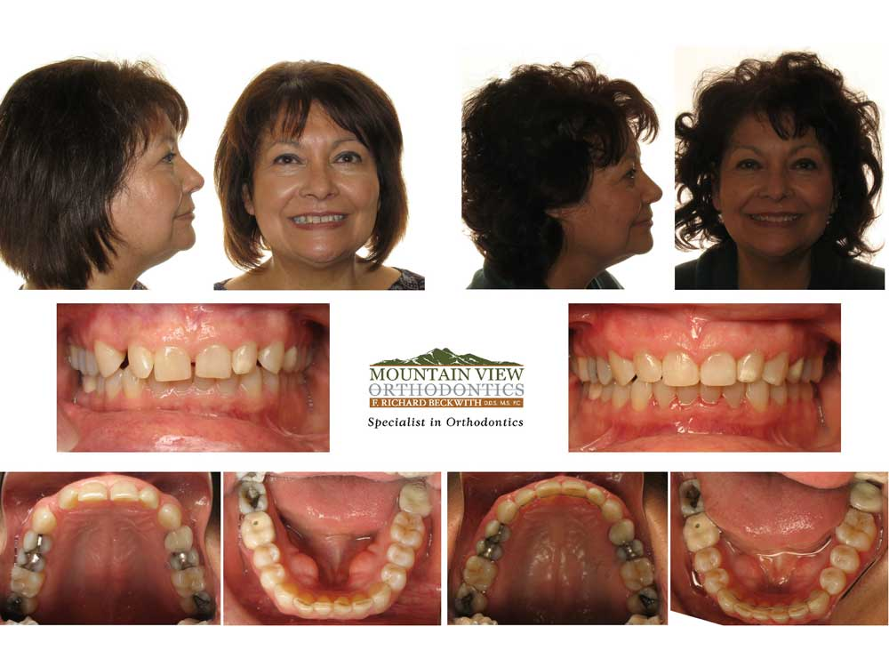Edwina-Before-and-After-Mountain-View-Orthodontics