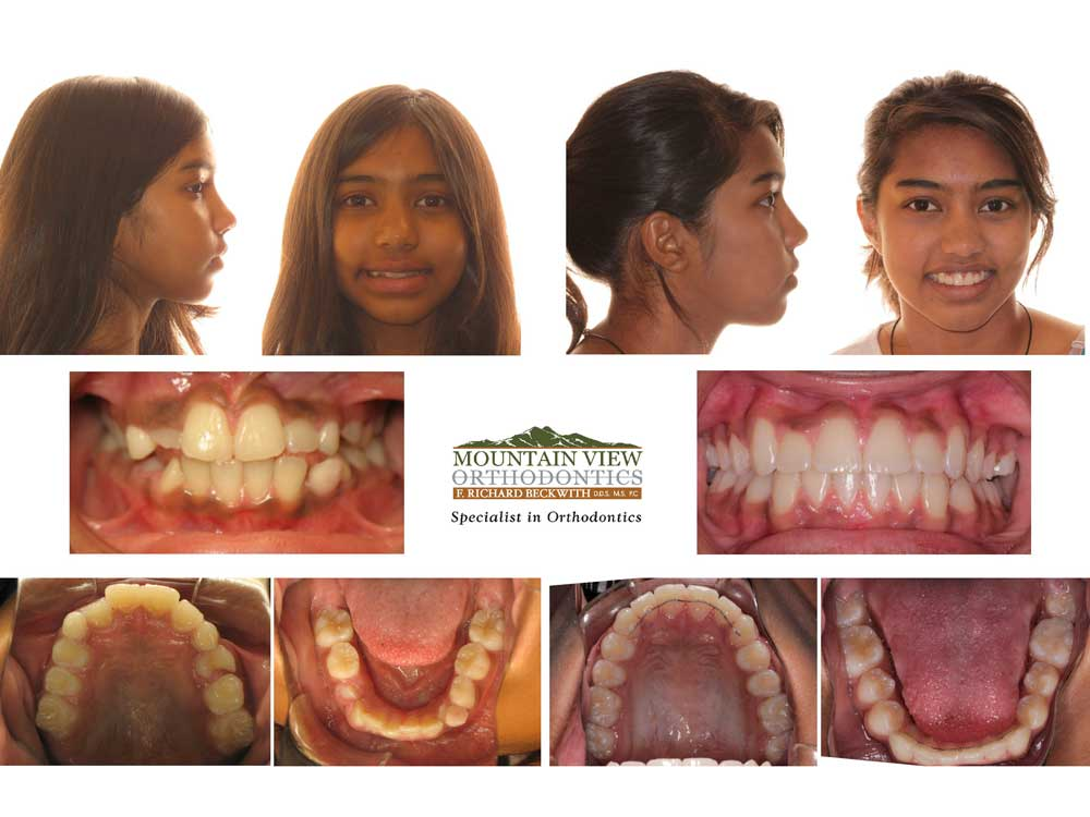 Humsini-Before-and-After-Mountain-View-Orthodontics