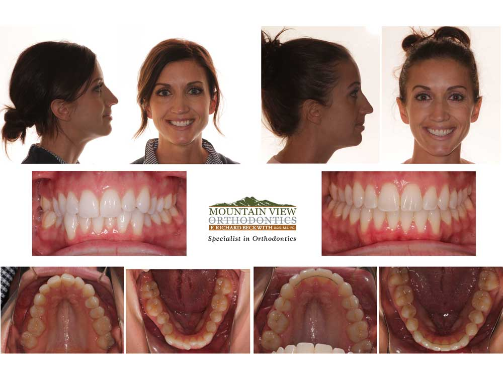 Jaime-Before-and-After-Mountain-View-Orthodontics