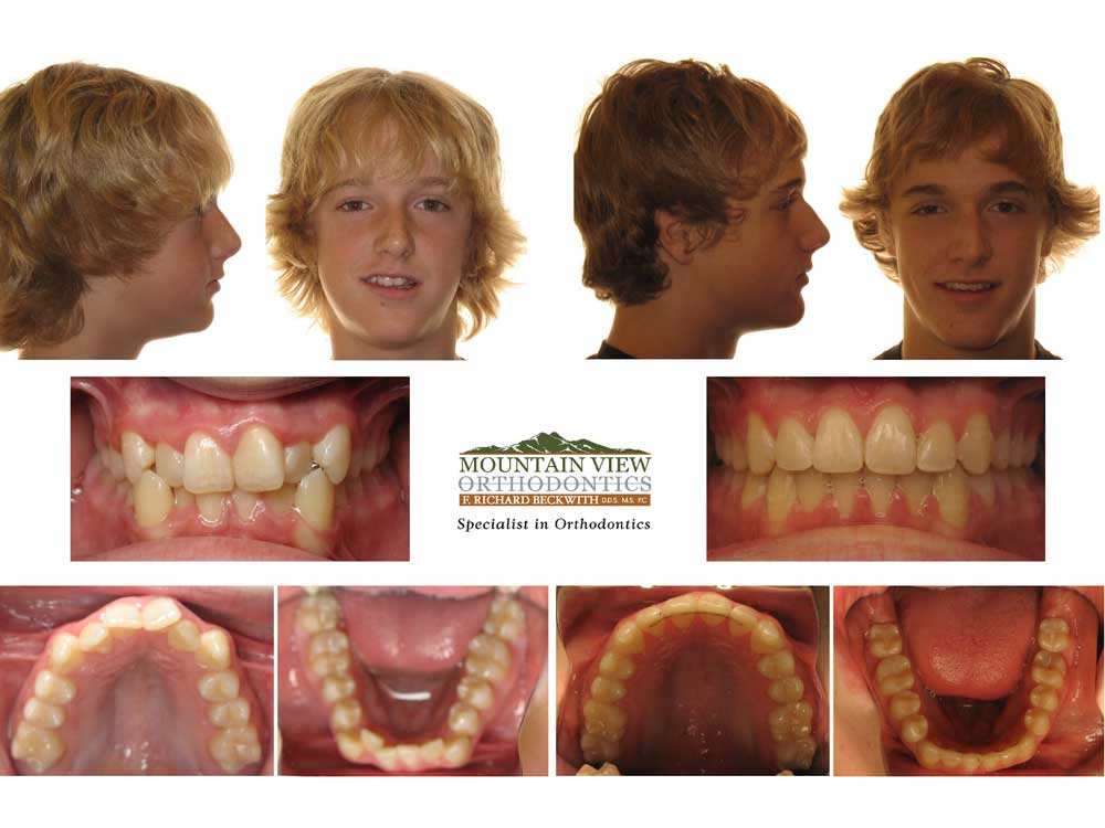 James-Before-and-After-Mountain-View-Orthodontics