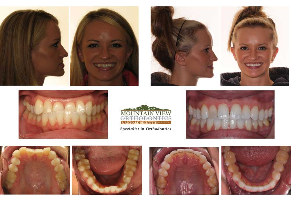 Jennifer-Before-and-After-Mountain-View-Orthodontics