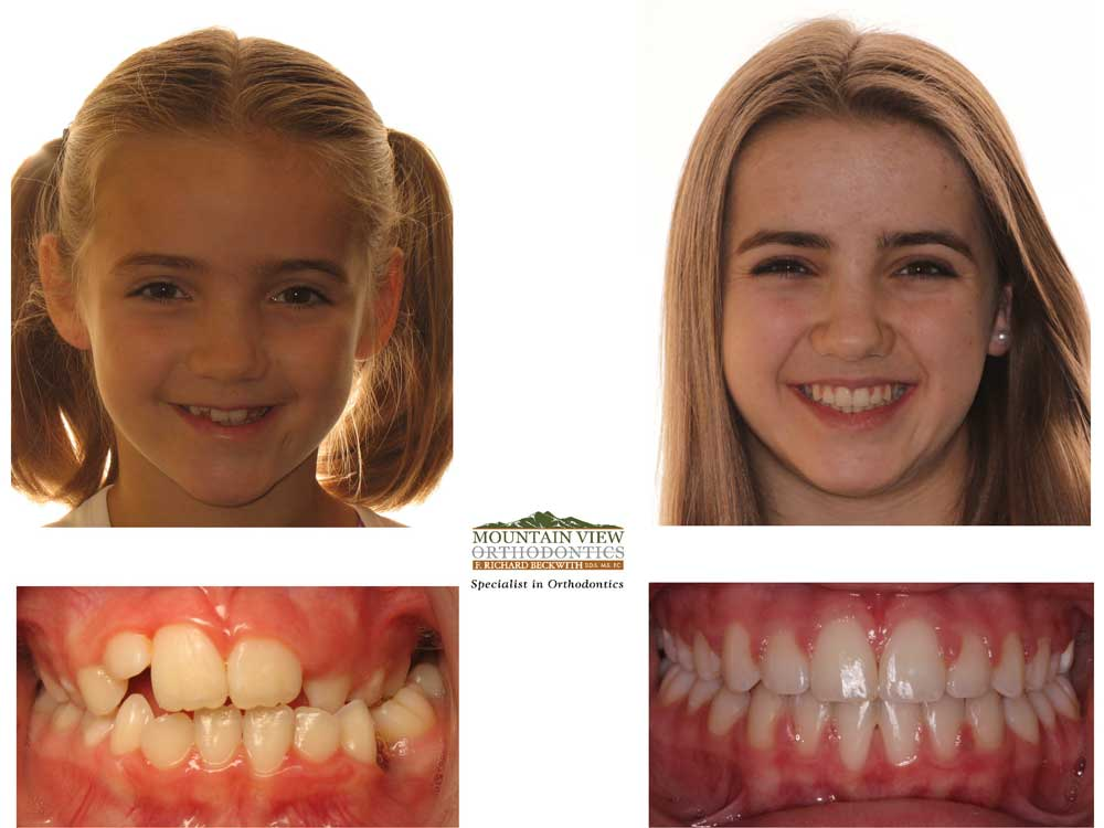 Johannah-Before-and-After-Mountain-View-Orthodontics