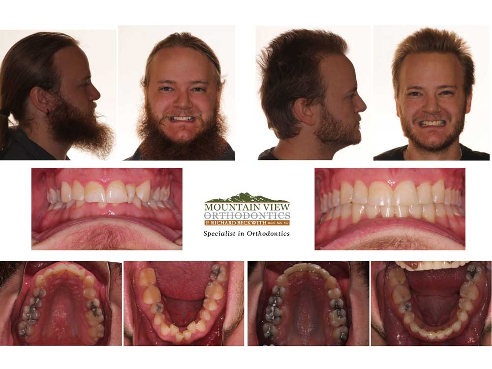 John-Before-and-After-Mountain-View-Orthodontics