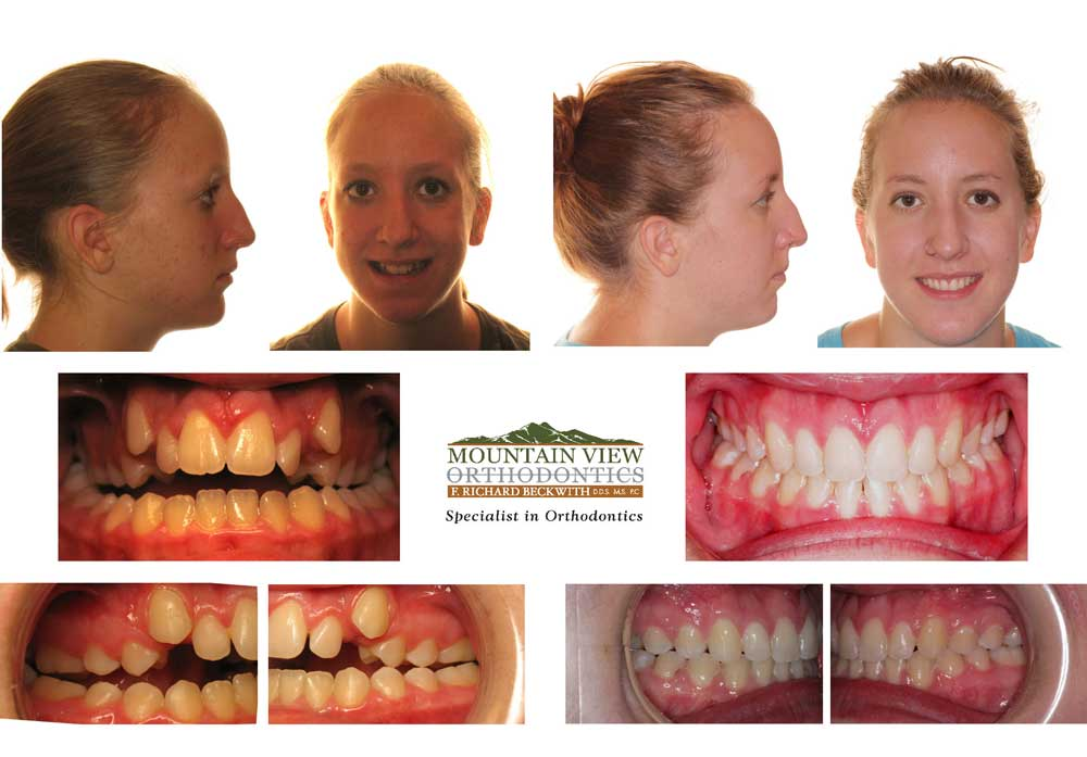 Kaley-Before-and-After-Mountain-View-Orthodontics