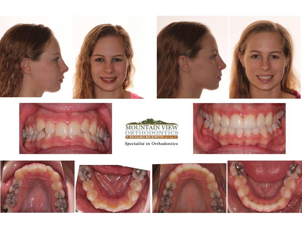 Invisalign Treatment Examples Longmont Berthoud CO ...