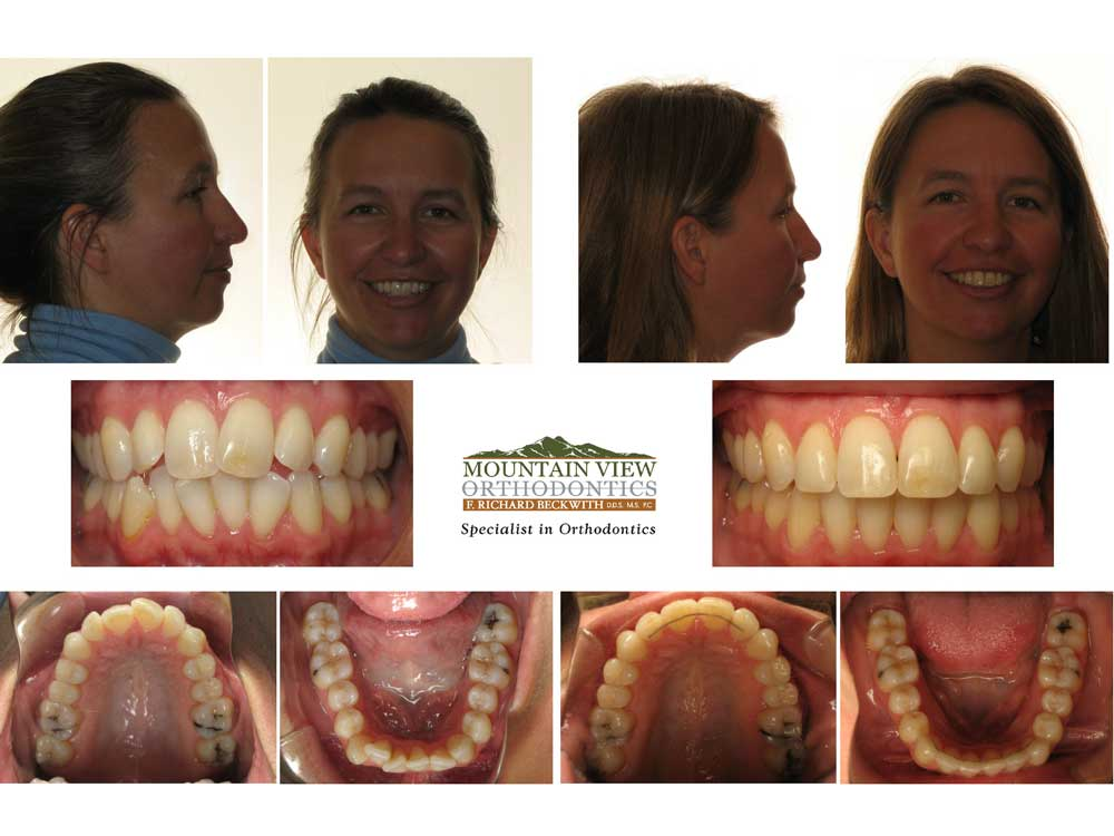Leah-Before-and-After-Mountain-View-Orthodontics