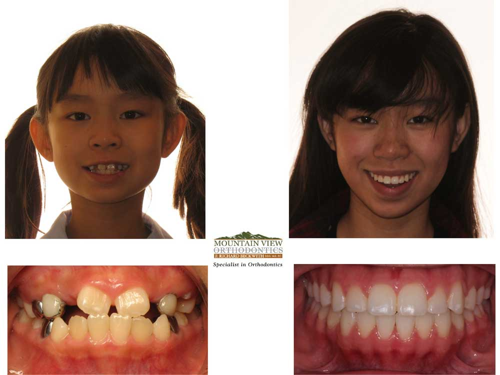 Michelle-Before-and-After-Mountain-View-Orthodontics