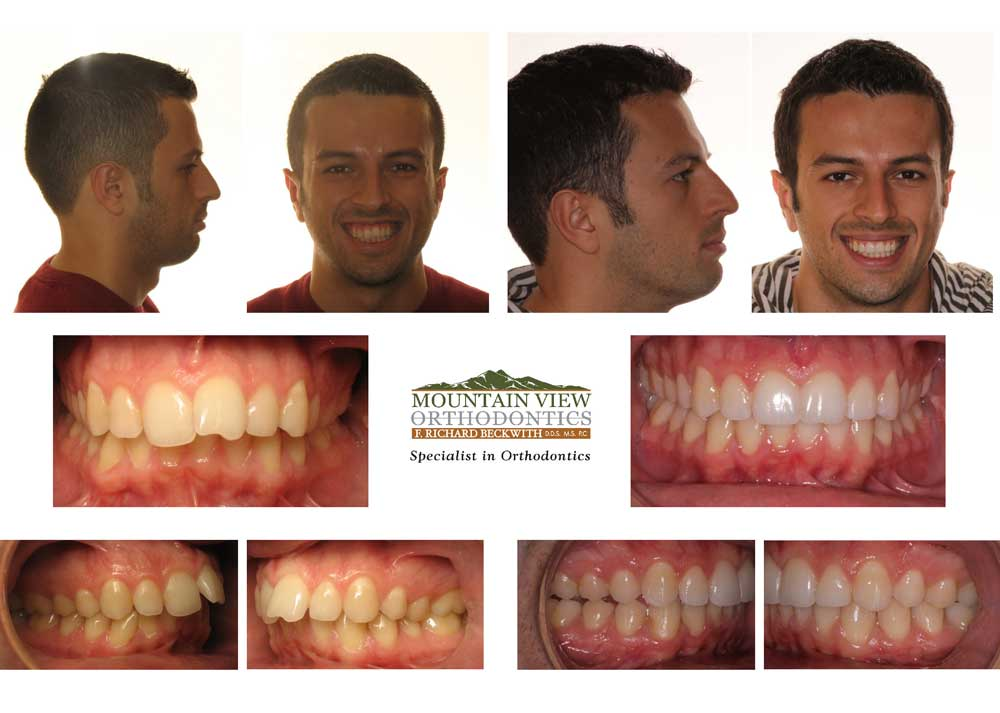 Serge-Before-and-After-Mountain-View-Orthodontics
