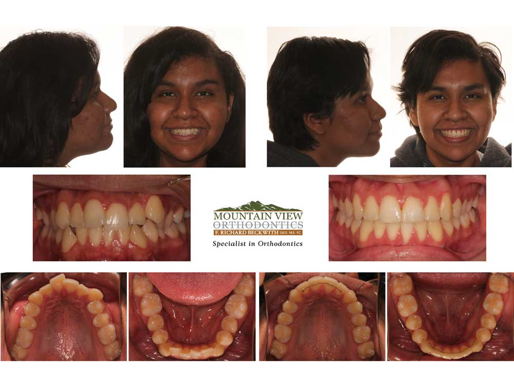 Sky-Before-and-After-Mountain-View-Orthodontics