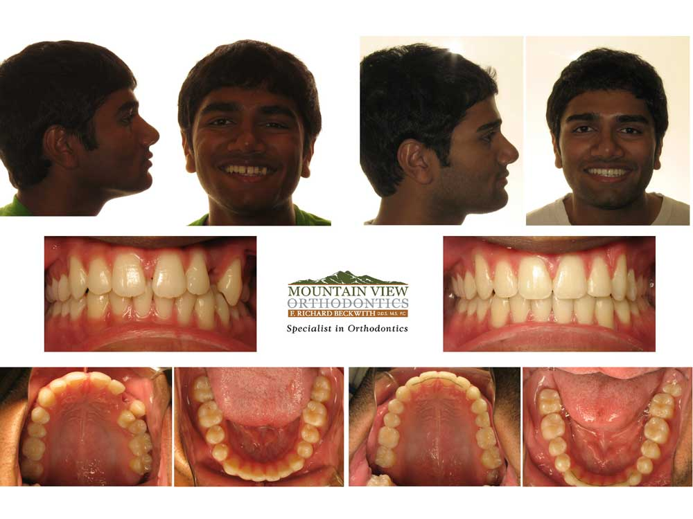 Varun-Before-and-After-Mountain-View-Orthodontics
